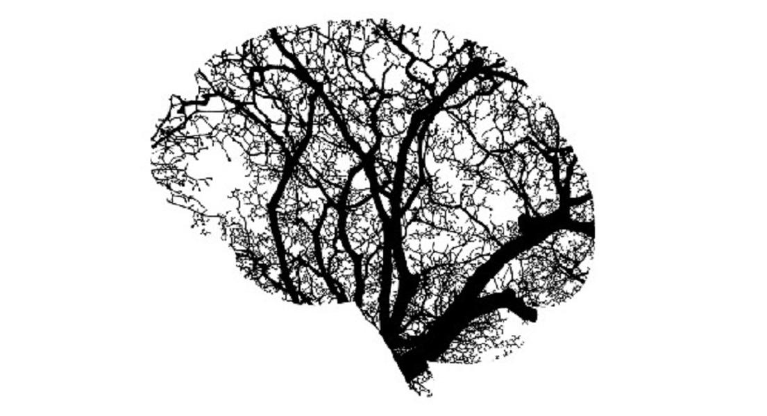 Dementia: Top Tips to Keep Your Brain Healthy